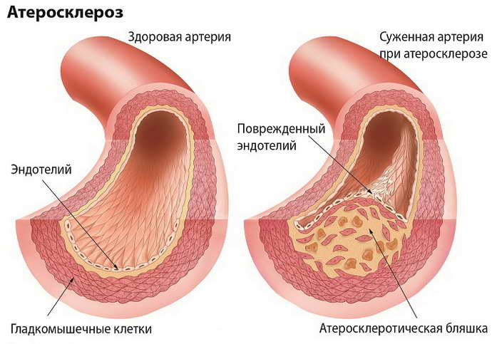 Первичная профилактика инсульта у женщин