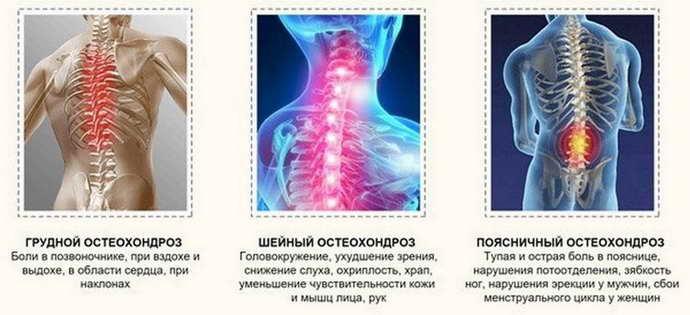 степени остеохондроза какие есть