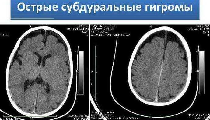 гигрома головного мозга причины