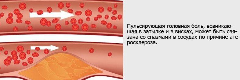 Боль в затылке и атеросклероз