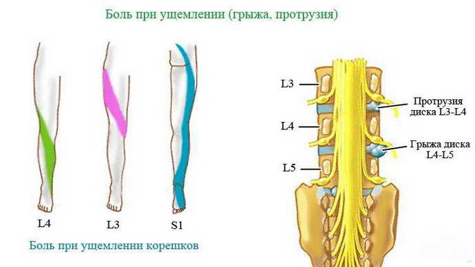 парамедианная грыжа классификация