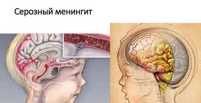 серозный менингит этиология