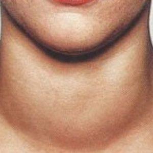 Зоб щитовидной железы 2 степени фото