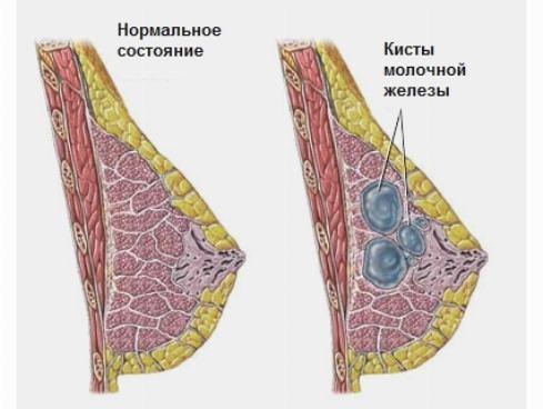 киста в молочной железе