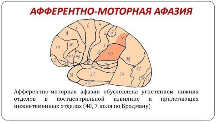 Причины возникновения моторной афазии