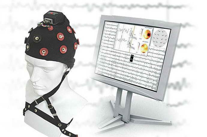 Внутричерепная регистрация ЭЭГ