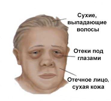 симптомы Гипоплазии