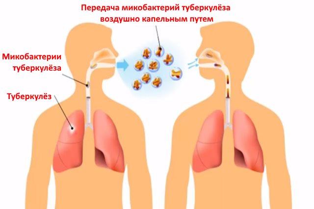 Передача микобактерий туберкулёза воздушно капельным путем