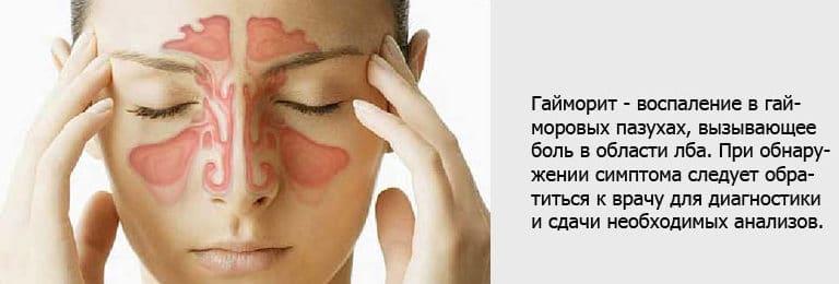 Гайморит и головная боль