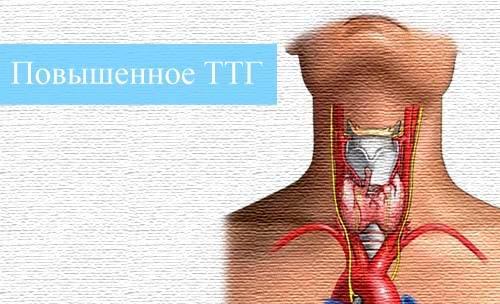 Повышенное ТТГ щитовидной железы