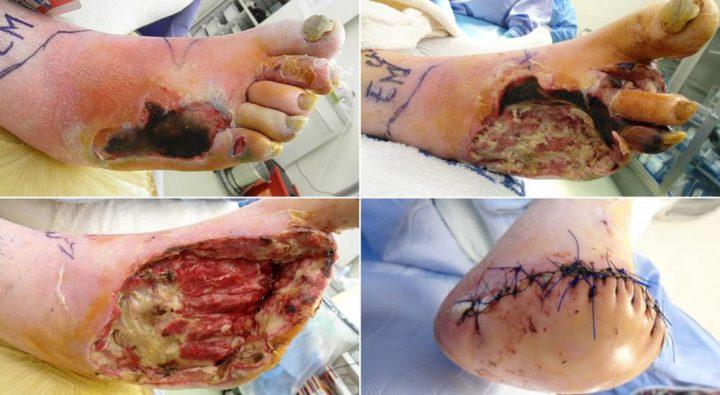 Операция при диабетической ангиопатии