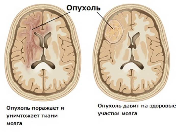 Причины гиперкинез