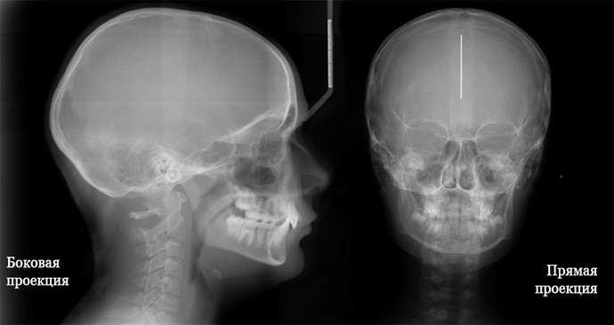 атеротромботический инсульт и его диагностика
