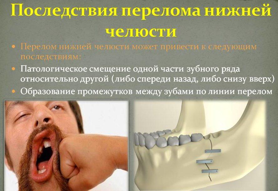 Перелом в челюсти и головная боль
