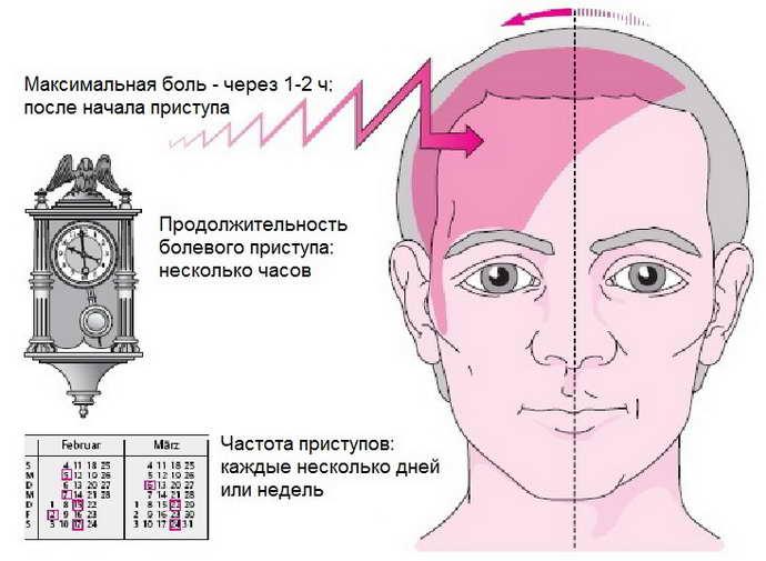 Симптомы мигрени какие бывают