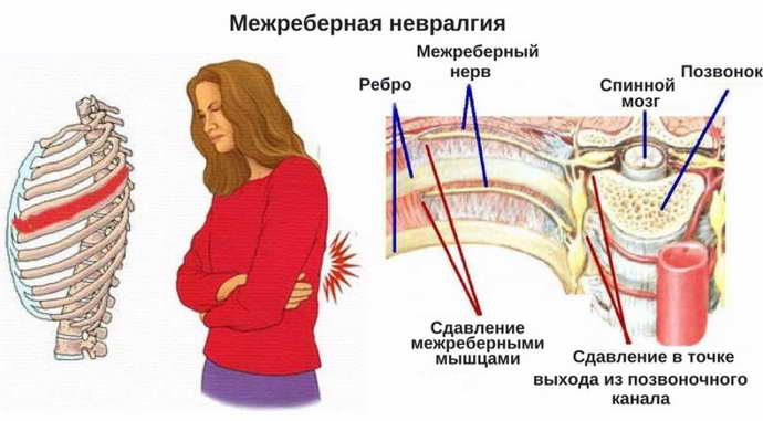 межреберный хондроз и его симптоматика