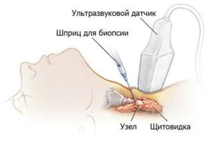 Манипуляции с щитовидной железой