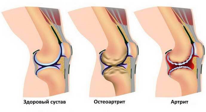 причины защемления нерва в коленном суставе