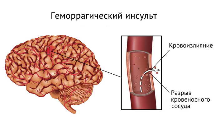 инсульт геморрагический левая сторона классификация
