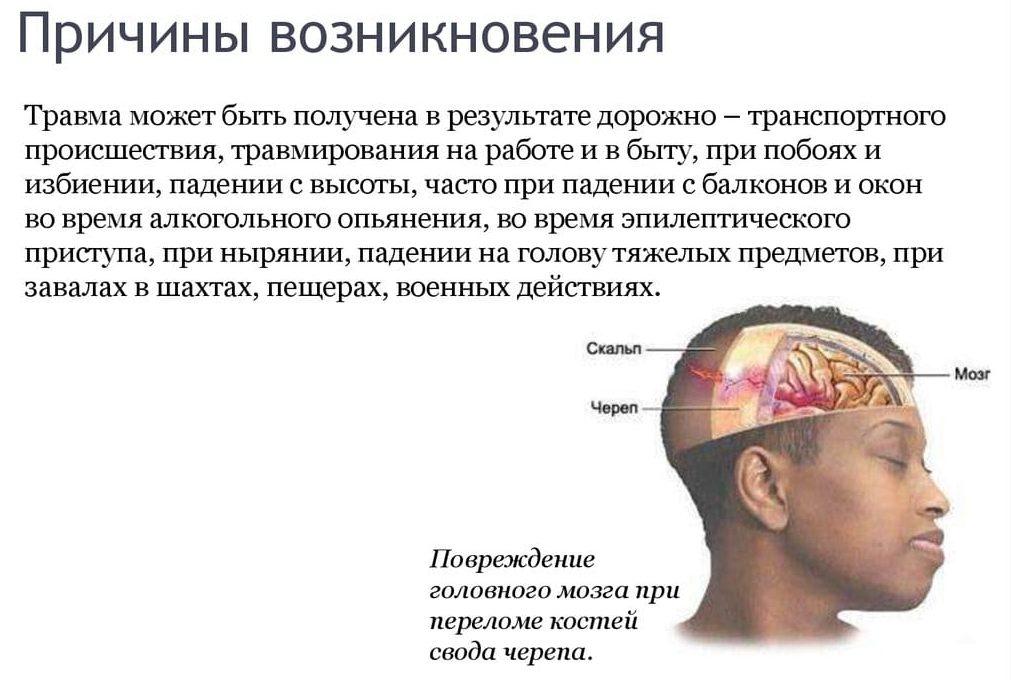 Причины ушиба