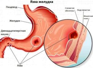 симптомы язвы двенадцатиперстной кишки фото