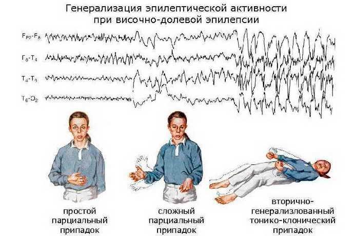 классификация височной эпилепсии