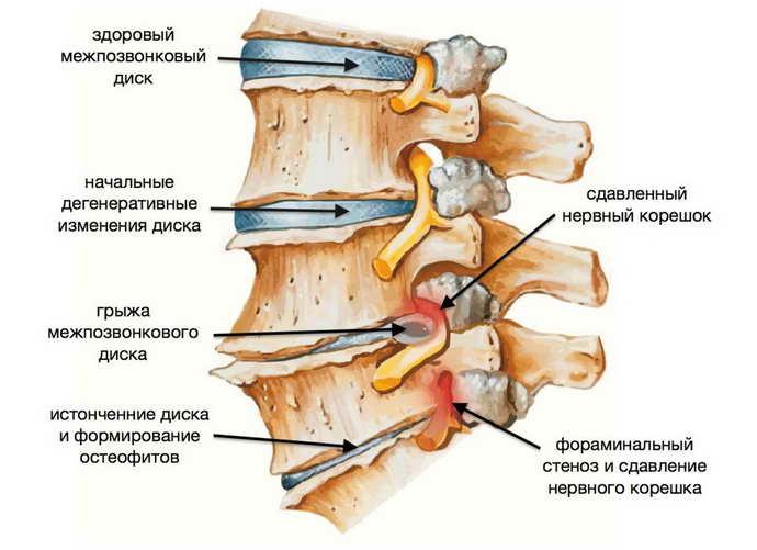 почему возникает остеохондроз ног
