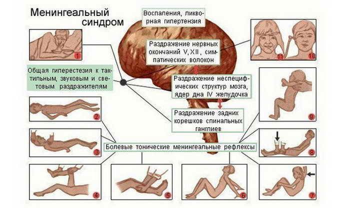 менингеальные симптомы