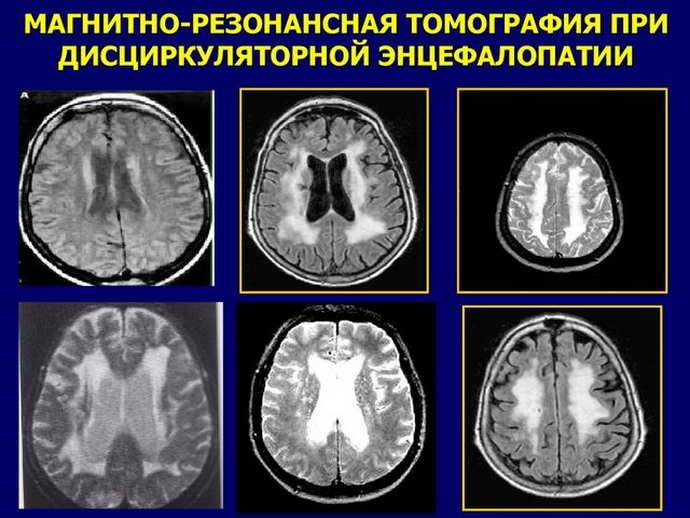 лейкоэнцефалопатия головного мозга виды