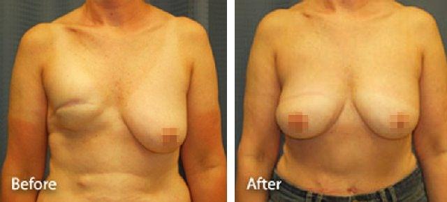 Восстановление молочной железы после мастэктомии