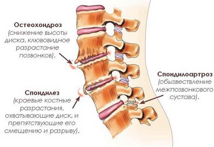 Дорсалгия шейного отдела позвоночника