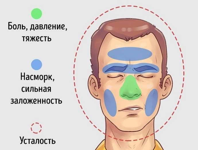 Особенности синусовой боли