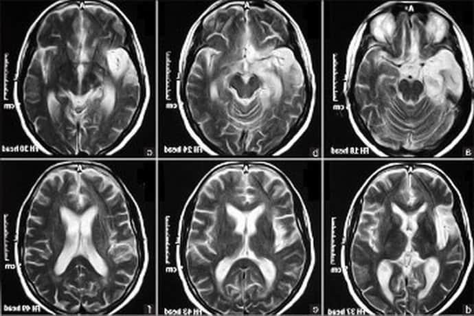 МРТ при эпилепсии: как проходит процедура