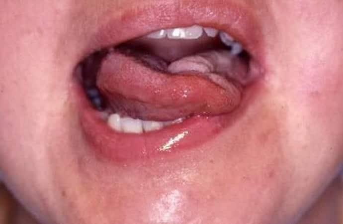 Симптомы бульбарного синдрома