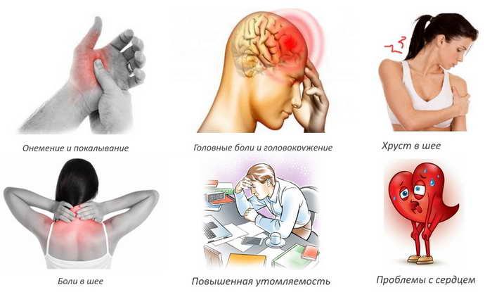 нарушение мозгового кровообращения при шейном остеохондрозе симптомы