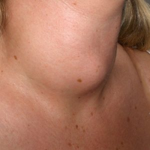 Увеличение щитовидной железы 2 степени фото
