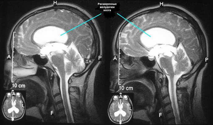 аместительная наружная гидроцефалия головного мозга разновидности