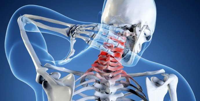 Грыжа шейного отдела позвоночника: симптомы и лечение патологического процесса