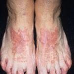 аллергический дерматит фото у взрослых на ногах