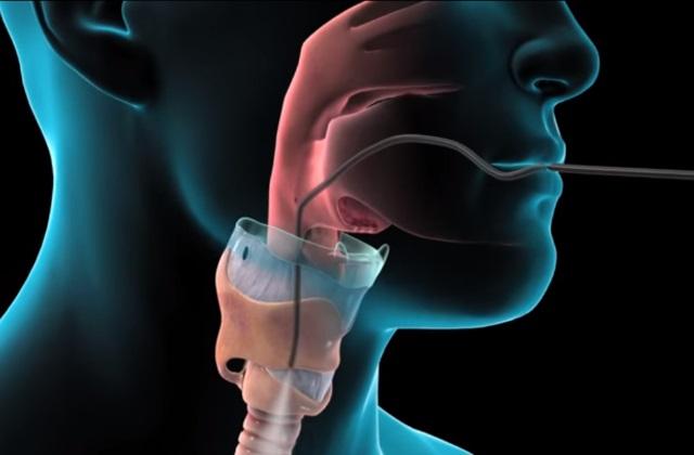 Бронхоскопия для определения легочных болезней