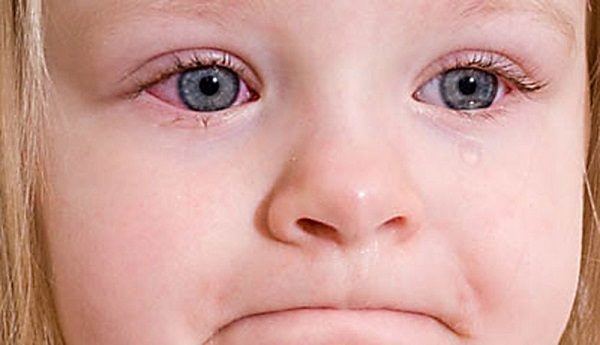 поражения глаз
