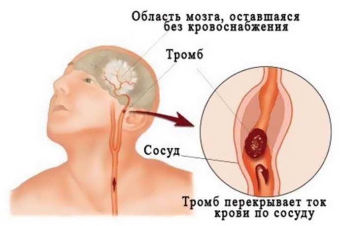 Причины появления тромба в голове