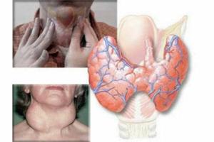 Воспаление при тиреоидите