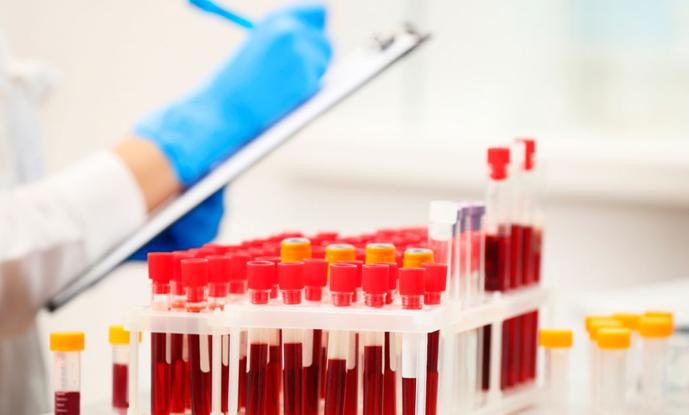 Норма мочевой кислоты в крови у женщин: таблица по возрасту, причины отклонений