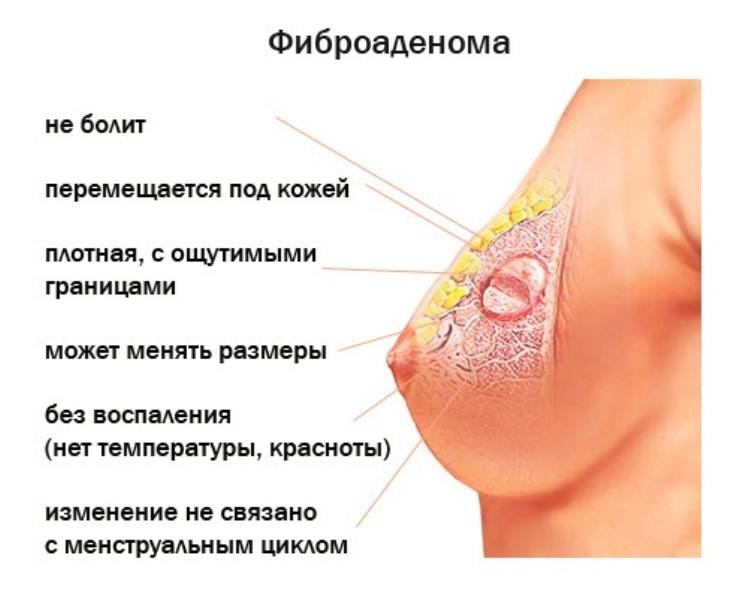 симптомы фиброаденомы молочной железы