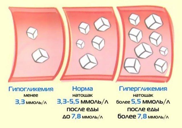гипергликемия глюкозурия