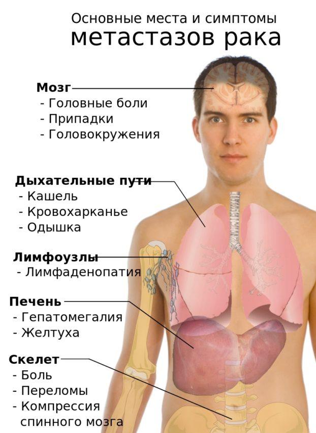 Рак щитовидки метастазы