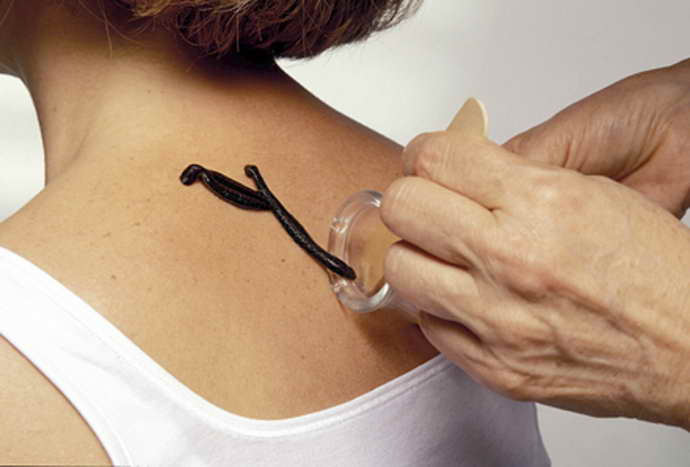 пиявки при остеохондроз шейного отдела что важно учитывать