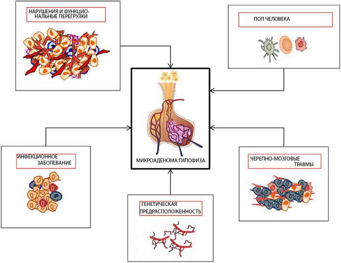 микроаденома гипофиза симптомы