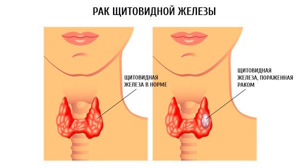 опухоль щитовидной железы симптомы у женщин